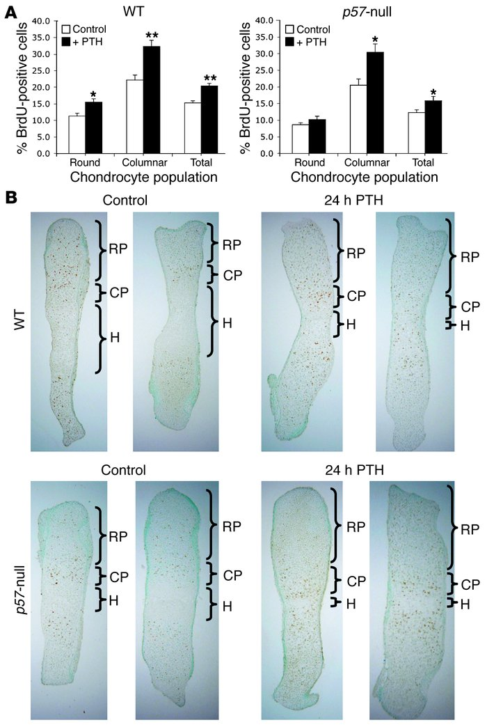 p57-null metatarsal response to PTH treatment. (A) Chondrocyte prolifera...