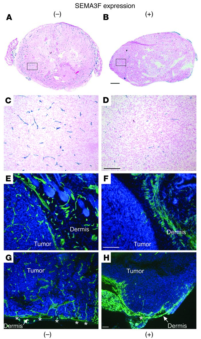 SEMA3F inhibits tumor angiogenesis. CD31 staining in tumors lacking (A, ...