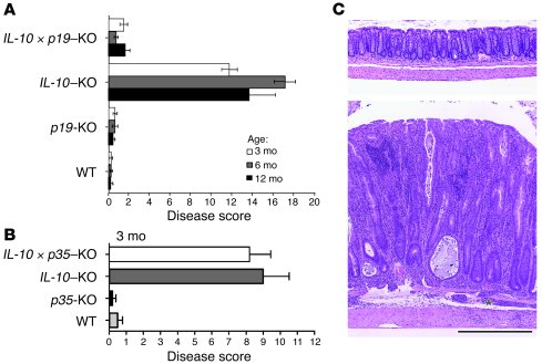 IL-23, but not IL-12, is essential for spontaneous colitis induced by IL...