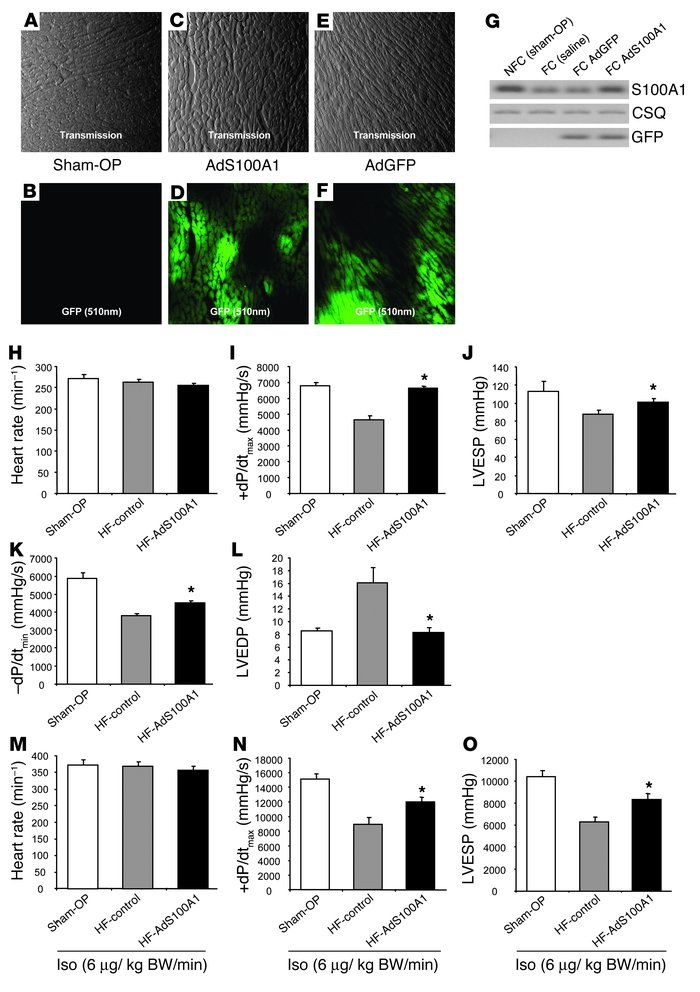 Intracoronary adenoviral S100A1 gene delivery rescues contractile dysfun...