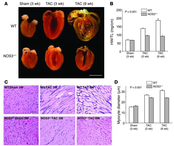 Lack of NOS3 ameliorates cardiac hypertrophy and dilatory remodeling in ...