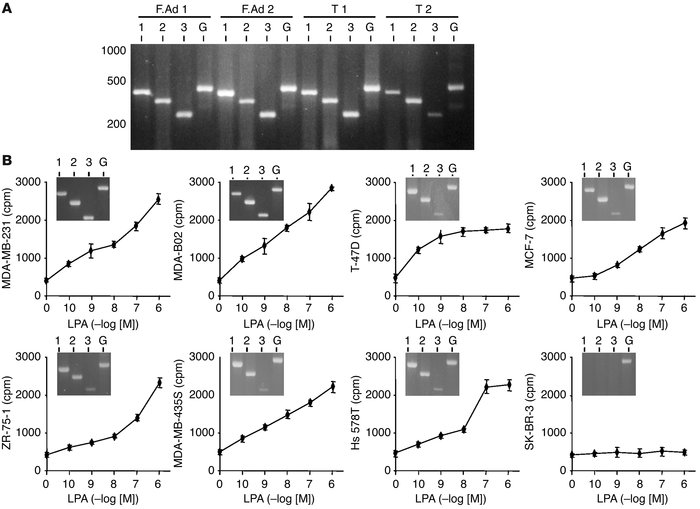 Expression of LPA receptors in breast cancer and mitogenic activity of L...