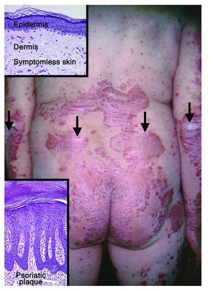 Clinical and histological appearance of stable chronic psoriatic plaques...