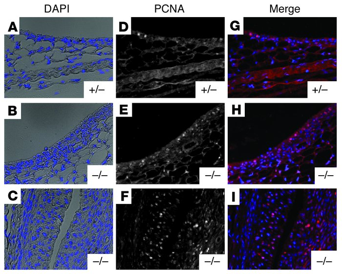 PCNA staining within the knee synovium of 10-day-old heterozygous and Pr...