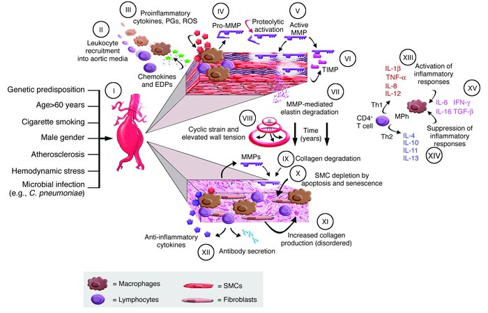 JCI - Adaptive cellular immunity in aortic aneurysms: cause ...