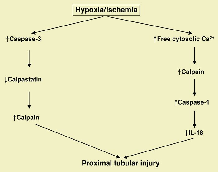 Hypoxic/ischemic proximal tubular necrosis results in activation of cyst...