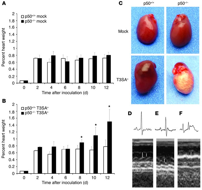 Heart pathology following reovirus infection of p50+/+ and p50–/– mice. ...