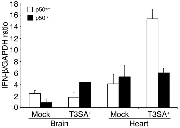 Levels of IFN-β mRNA in brain and heart of p50+/+ and p50–/– mice. Newbo...