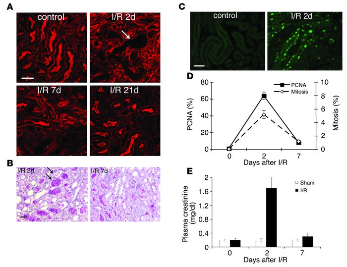 Characterization of I/R injury in chimeric mice. (A) Phalloidin staining...