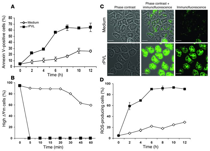 Kinetics of plasma membrane and mitochondrial alterations during rPVL-in...
