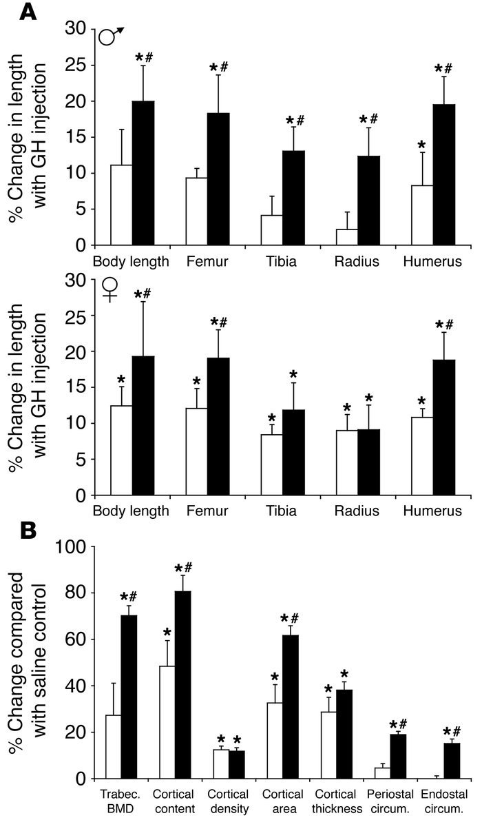 SOCS2 controls bone growth parameters. (A) Long bone lengths and femur m...