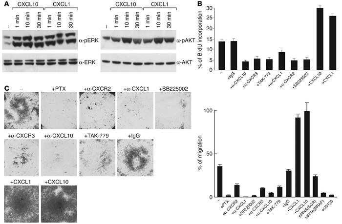 Functional activities of CXCL1 and CXCL10 in human PTC cell lines. (A) S...