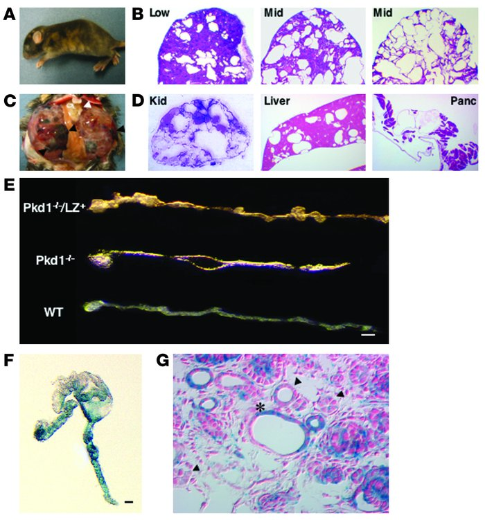 Pkd1–/–/LZ+ mice as an animal model of human ADPKD. (A) Appearance of a ...