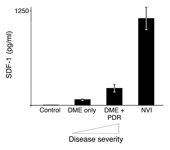 SDF-1 expression increases with severity of diabetic retinopathy. SDF-1 ...