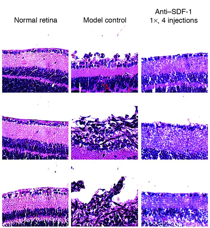 Cross-sectional analysis of retinal architecture. Normal retina: H&E...