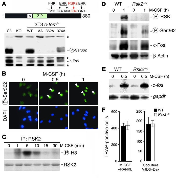 c-Fos phosphorylation by RSK2 is not required for osteoclast differentia...
