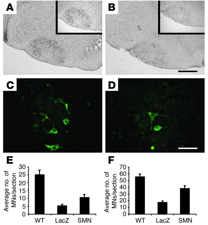SMN gene replacement protects spinal and brain stem MNs in SMA mice. ChA...