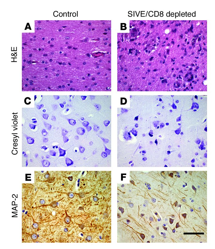 Histopathological examination reveals inflammation, MNGCs, and neuronal ...