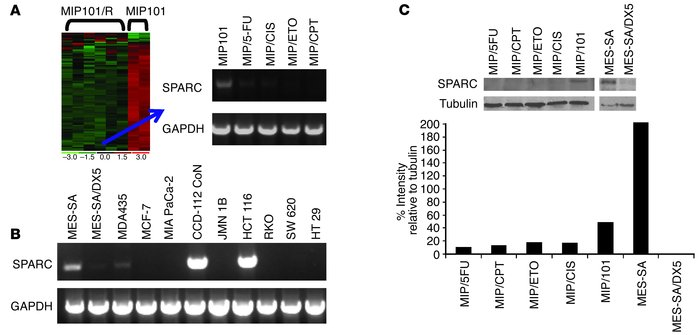 Human SPARC mRNA and protein levels in cell lines sensitive and resistan...