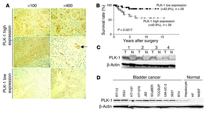 PLK-1 expression correlates with the progression of bladder cancer. (A) ...