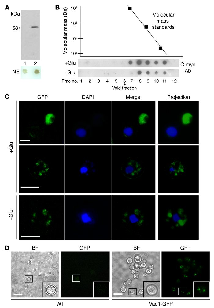 Vad1 is contained within cytoplasmic bodies of high molecular weight in ...