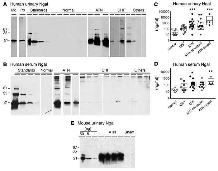 Ngal expression in ATN of human (A–D) and mouse (E). (A) Monoclonal anti...