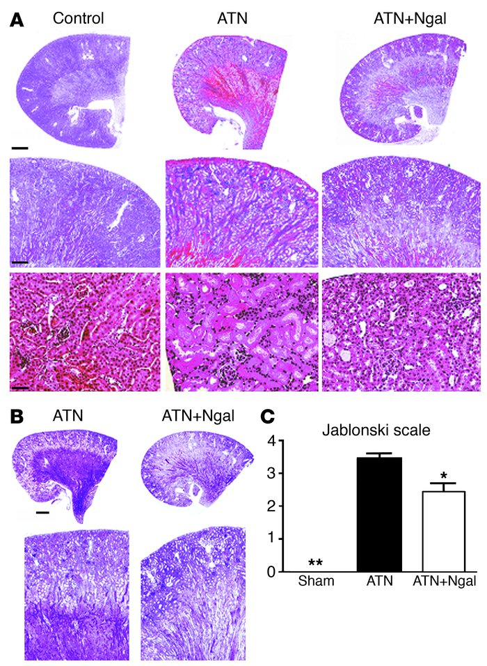 Rescue of mouse ATN by Ngal. (A) Holo-Ngal (100 μg) was injected into th...