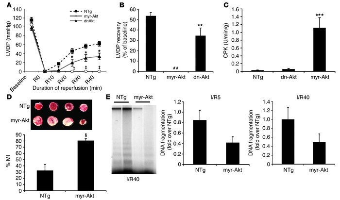 Chronic Akt activation in myr-Akt–Tg mice has detrimental effects on car...