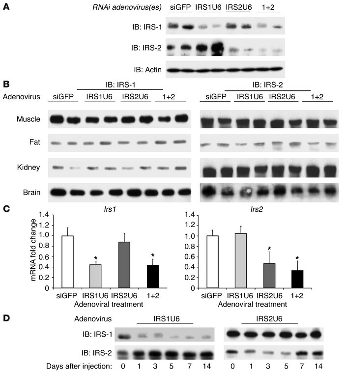 RNAi adenoviruses cause substantial and specific knockdown of IRS-1 and ...