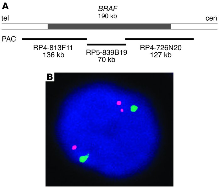 Identification of the BRAF gene rearrangement. (A) Genomic region on 7q ...