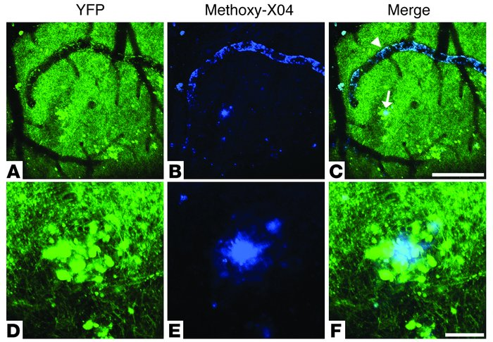 Neuritic plaques and CAA in a living PDAPP;Thy-1:YFP double-transgenic m...