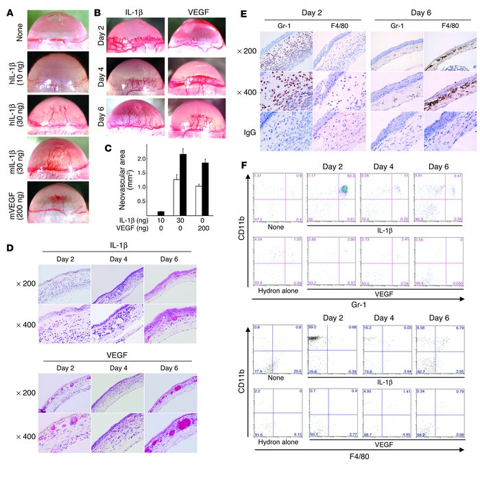 IL-1β– and VEGF-induced angiogenesis and inflammatory cell infiltration ...