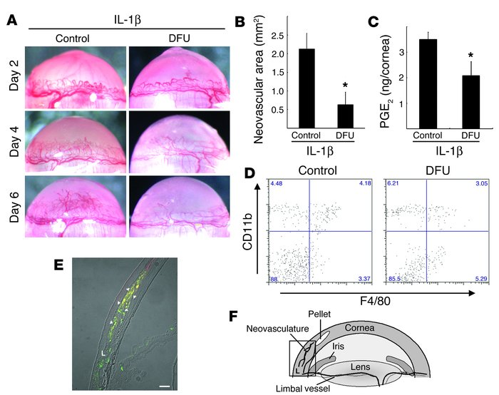 Expression of COX-2 in infiltrating macrophages during IL-1β–induced ang...