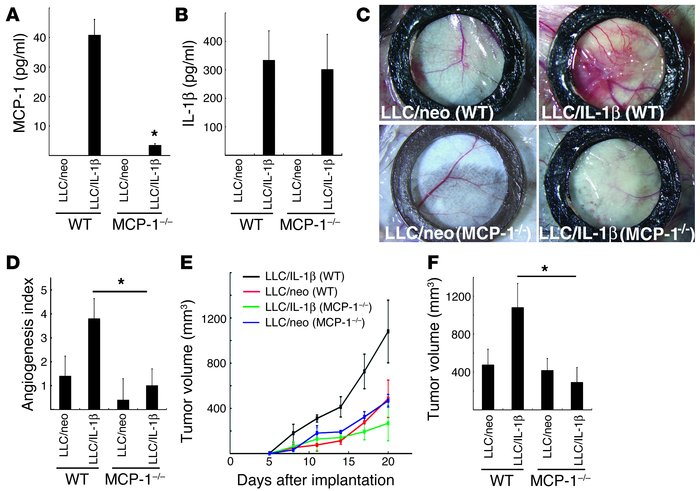 IL-1β–induced tumor angiogenesis in MCP-1–/– mice. (A) MCP-1 levels in t...