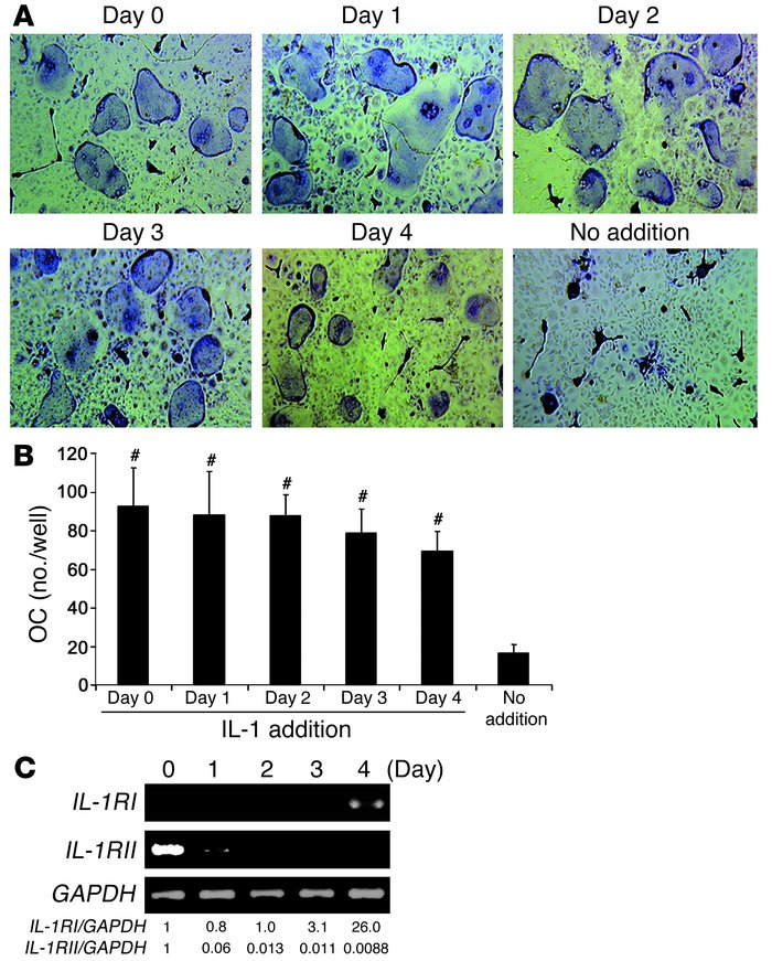 IL-1 induction of osteoclast precursor differentiation occurs within a b...