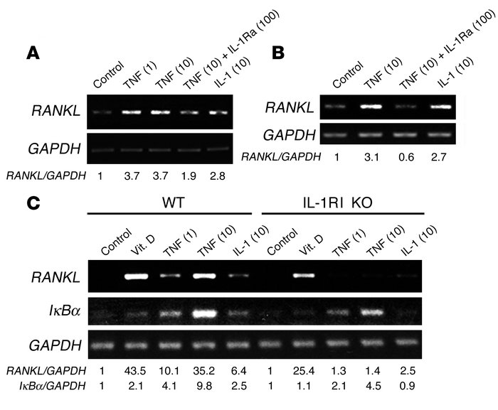 TNF-induced RANKL gene expression is mediated by IL-1. (A and C) VCAM-1–...