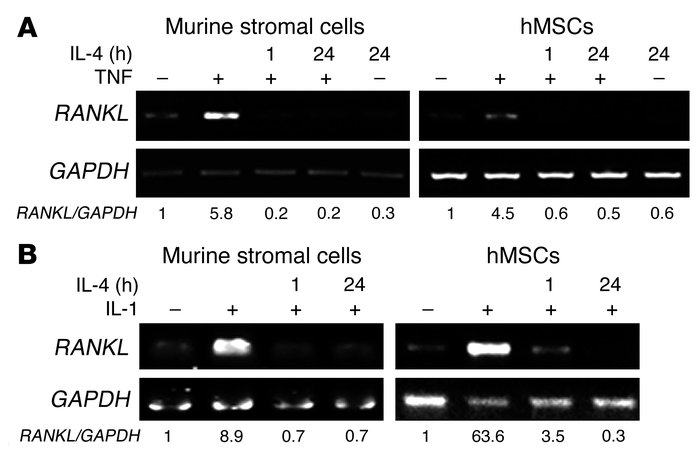 IL-4 inhibits TNF- or IL-1–induced RANKL expression. VCAM-1–positive mur...