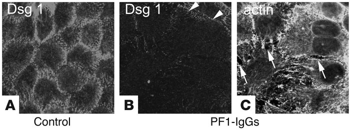 PF-IgG–induced cell dissociation is accompanied by loss of Dsg1 staining...