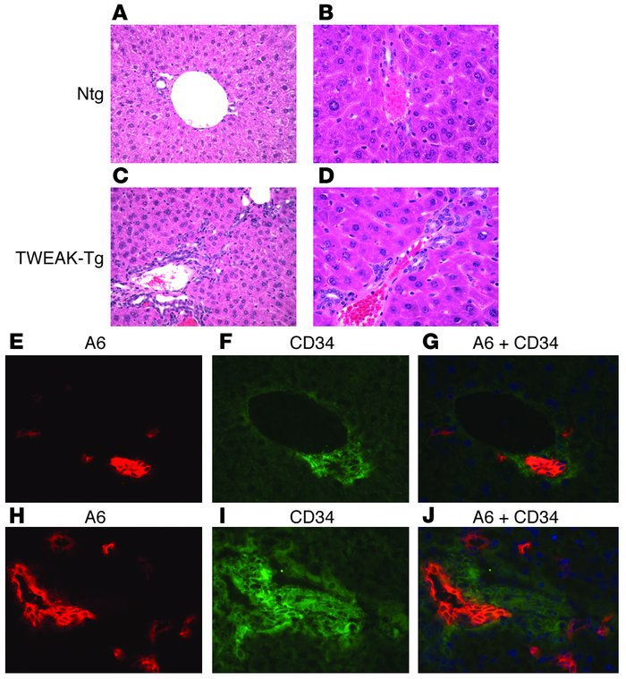 TWEAK overexpression promotes oval cell hyperplasia. (A–D) H&E stain...