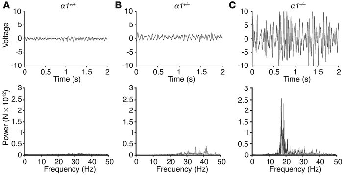 GABAA receptor α1–/– mice exhibit essential-like tremor. Normal physiolo...