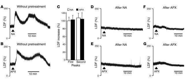 Nicotinic acid– and acipimox-induced flushing response in the mouse exte...
