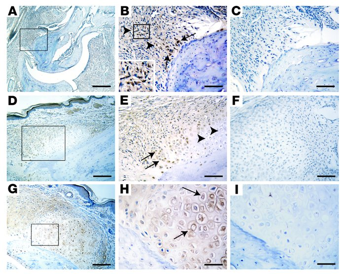 BMP immunohistochemistry in ankylosing enthesitis. (A–C) The first phase...