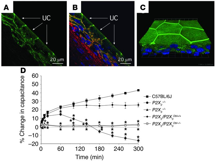 Localization of P2X3 in the uroepithelium and responses to pressure chan...