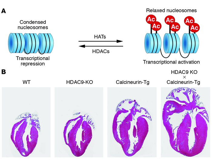 Model of HDAC function and hypersensitivity of HDAC9-knockout mice to ca...