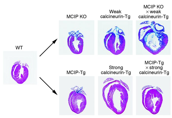 Modulation of cardiac calcineurin signaling by MCIP expression. The uppe...