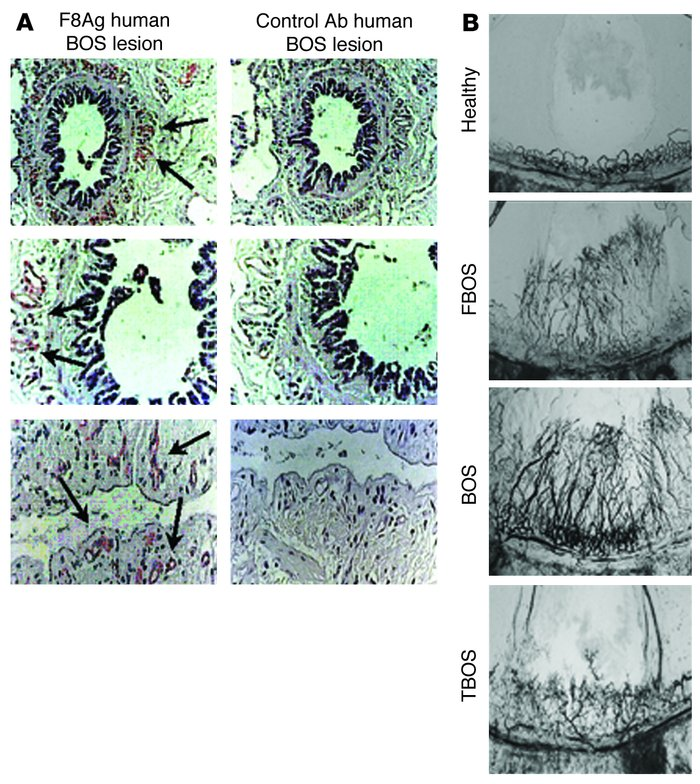Vascular remodeling occurs during the pathogenesis of human BOS. (A) Rep...