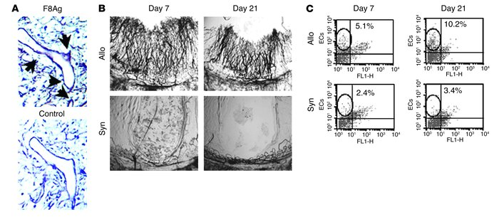 Vascular remodeling occurs during the pathogenesis of murine BOS. (A) Re...