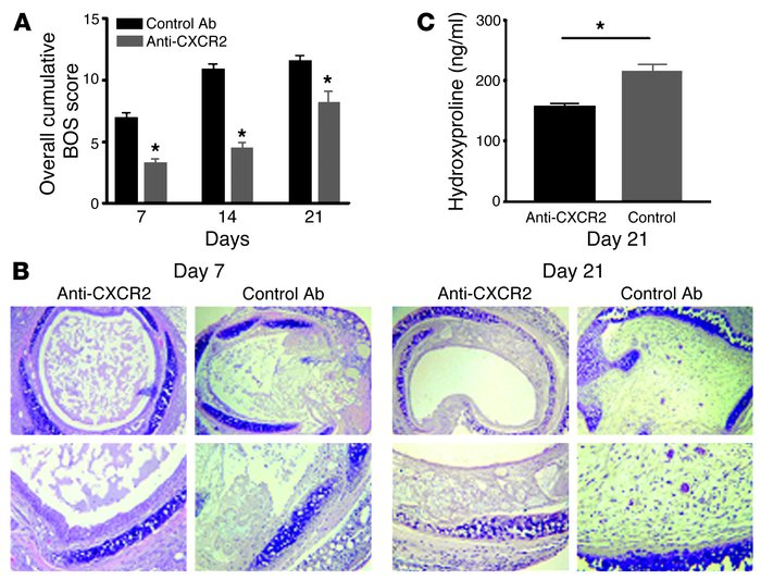 Inhibition of CXCR2/CXCR2 ligand biology attenuates murine BOS. (A) Quan...