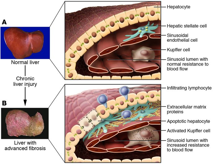 Changes in the hepatic architecture (A) associated with advanced hepatic...