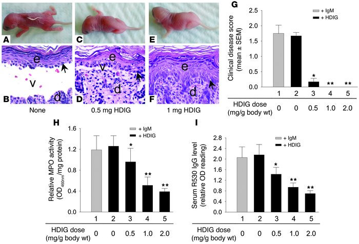 High-dose Ig inhibits experimental BP by accelerating degradation of pat...